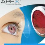 Individuelle Kontaktlinsen mit Apex