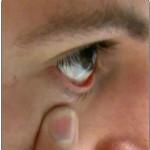 """Was tun wenn die Kontaktlinse """"hinter das Auge"""" gerutscht ist?"""