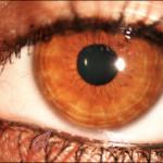 Kosmetika auf dem Lidrand kann zu trockenen Augen führen